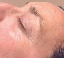 podmladjivanje lica